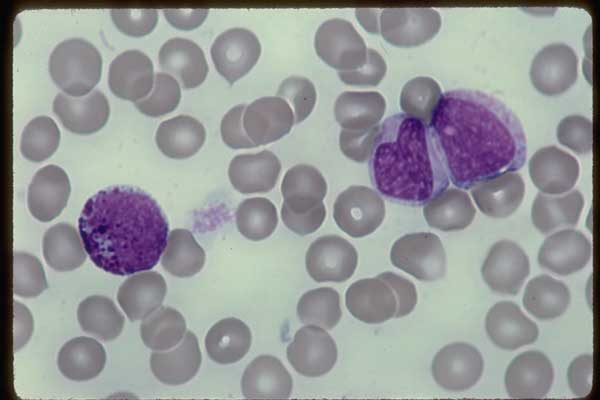 White Blood Cell (WBC)